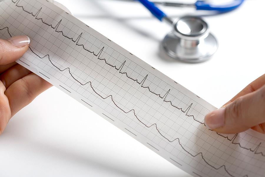 electrocardiograma a domicilio en Rosario
